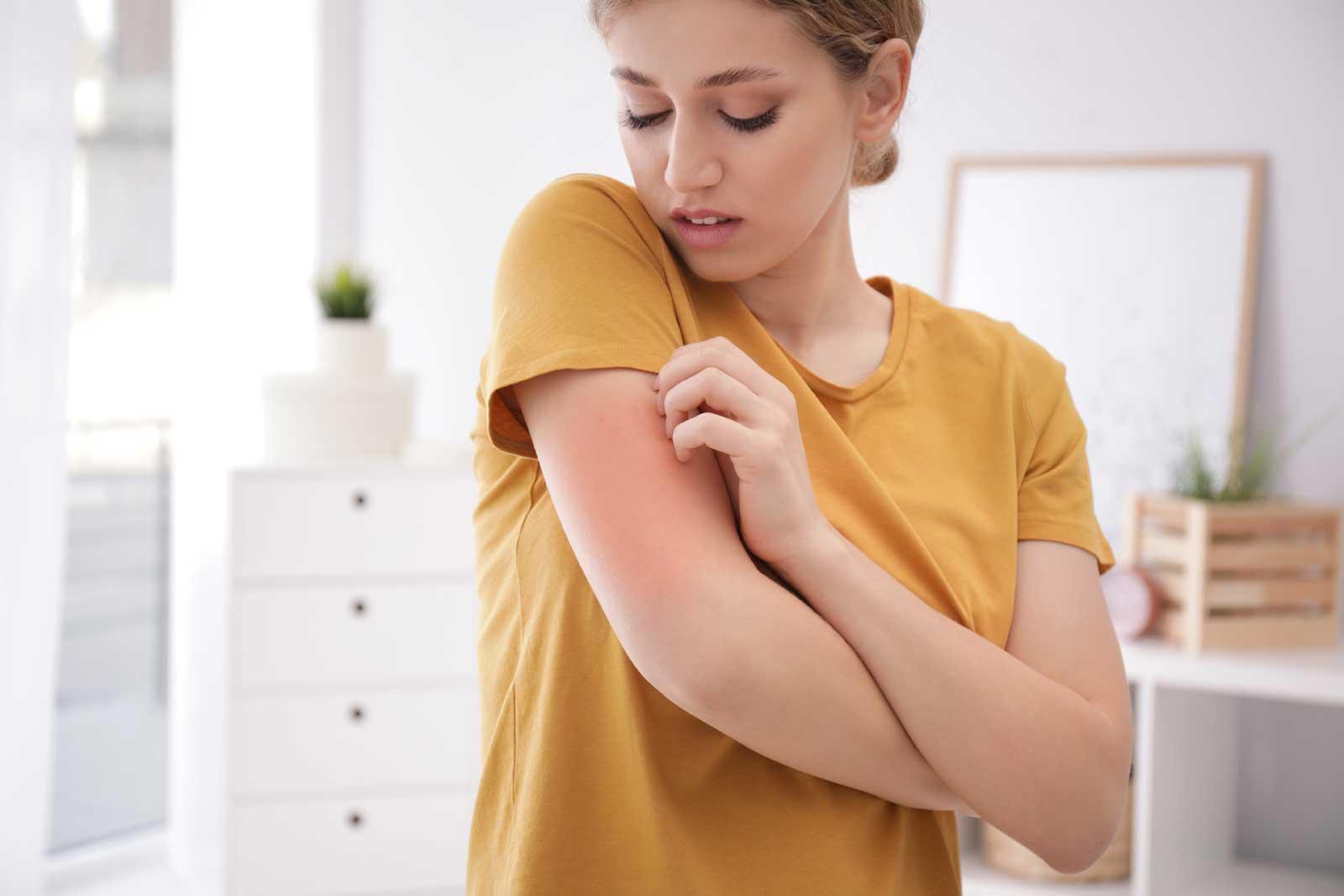 A csalánkiütés egy allergiás bőrbetegség, ami viszketéssel és a bőr felsőbb rétegeinek fakó vagy vöröses színű duzzanatával jár