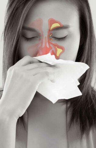 SinuSalt orröblítő légúti allergiásoknak
